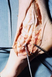 Natural color photograph of dissection of the right ankle, medial view