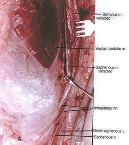 Natural color photgraph of right knee, anteromedial view, showing vein, muscles and nerves with the Sartorius muscle retracted