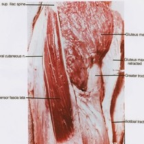 Natural color photograph of dissection of left upper leg, lateral view, showing ...
