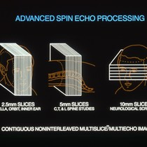 Advanced Spin Echo Processing diagram