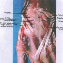 Natural color photograph of dissection of left wrist, posterior view, showing bones ...