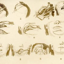 Diagram of facial surgery [1]