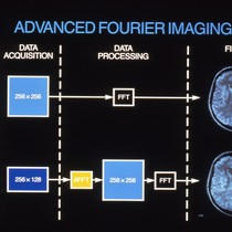 Advanced Fourier Imaging diagram
