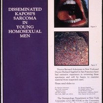 Disseminated Kaposi's Sarcoma in Young Homosexual Men request for specimens