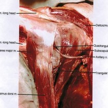 Natural color photograph of diessection of the left shoulder, posterior view with ...