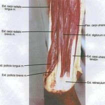 Natural color photograph of dissection of left forearm, posterior view, showing extensor ...