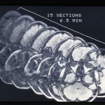 15 sections MRI head scan