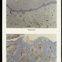 Factor VIII staining of normal and cancerous cervical epithelium