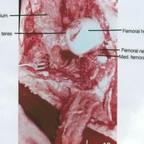 Natural color photograph of dissection of hip joint with the femoral head ...