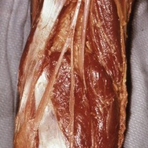 Natural color photograph of dissection of the popliteal fossa, showing branches of ...
